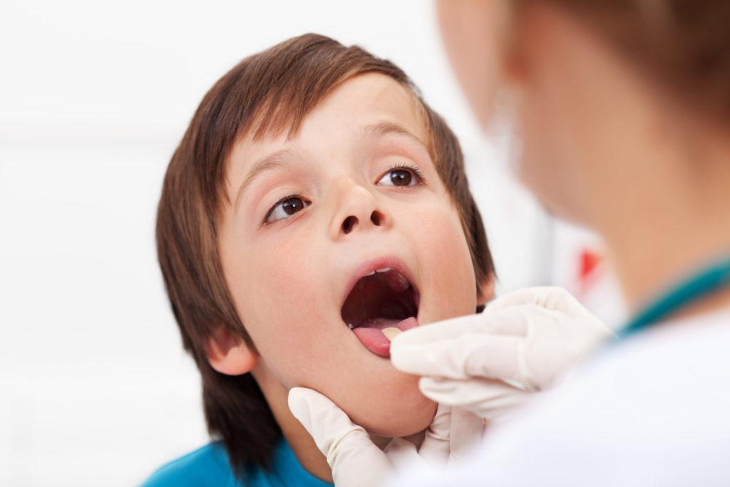 chłopiec pokazuje gardło lekarzowi