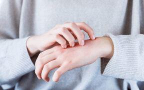 Egzema na dłoniach - przyczyny i pielęgnacja